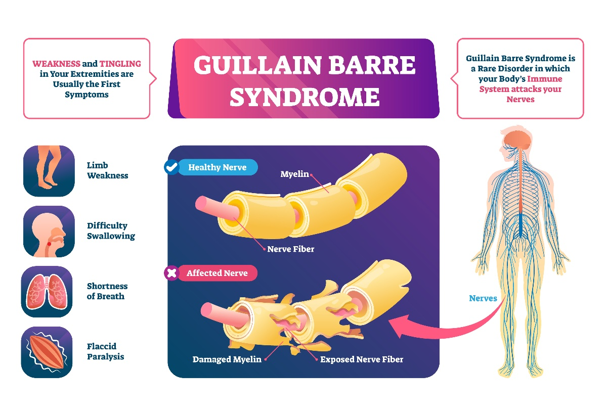 Guillain Barre Syndrome - My Vaccine Lawyer-1